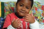 جراحة فريدة.. أصغر طفل بيدين مزروعتين يذهل الأطباء
