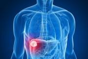 'فوسيفي'.. عقار لفيروس 'سي' بنسبة شفاء 97 بالمائة