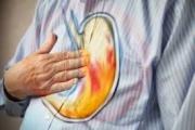 الحموضة الزائدة في الجسم .. أعراضها وكيفية معالجتها