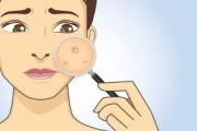 نصائح عملية للتخلص من بثور الوجه