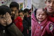 #عيوننا_لكريم.. حملة تضامنية مع رضيع سوري محاصر