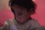 أحرق الصقيع وجهها وصارعت الموت لساعاتٍ على جبل غطته الثلوج.. قصة طفلة سورية فقدت عائلتها خلال اللجوء إلى لبنان (فيديو)