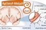 انفوجرافيك: 8 أسباب للجلطة الدماغية