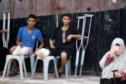 التايمز: لدينا جيل من مبتوري الأطراف في غزة