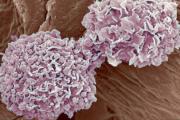 التوقف عن شرب الكحول وتناول لحم الخنزير لتقليص فرصة الإصابة بالسرطان
