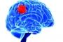 عقار يعالج سرطان الدماغ