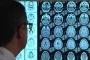 الكشف عن طريقة قد تحسن ذاكرة المصابين بألزهايمر