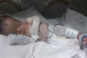 طفل أميركي يولد من دون جلد في حالة نادرة