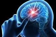 لا بد لك أن تعرفه.. اختبار بسيط ينقذ حياة المصابين بالجلطة الدماغية