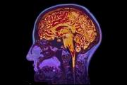 10 أطعمة 'يحبها الدماغ'.. وتقوي الذاكرة