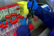 تقنية «الخرطوشة الأخيرة» لعلاج مُصابي «كورونا»